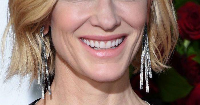 Ventajas e inconvenientes de llevar carillas dentales